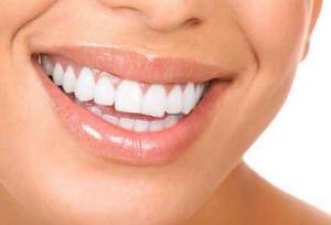 歯がしみるのはホワイトニングや冷たい食べ物?歯周病が原因で虫歯じゃない!